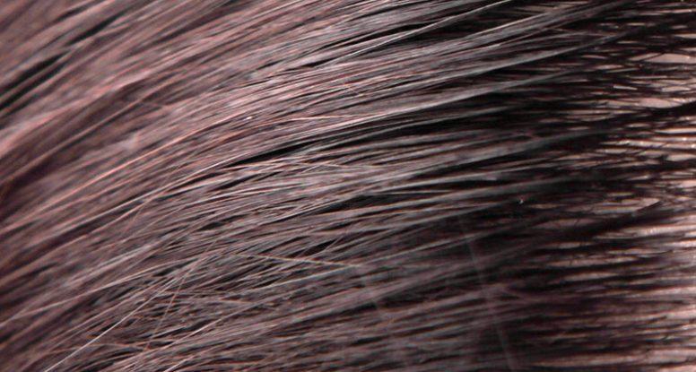 Daño severo del cuero cabelludo en un poro